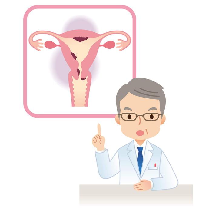 子宮がん健診